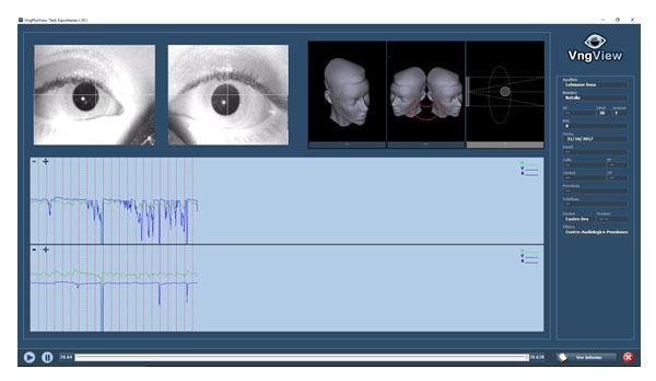Estudio-de-Videonistagmografía1