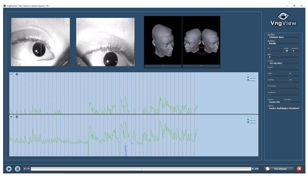 Estudio-de-Videonistagmografía2